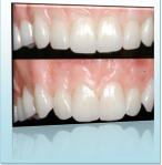 Webinar Teeth
