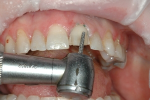 FIGURE 3: Tooth #9 was prepared for the veneer restoration.